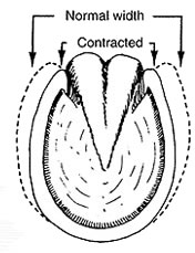 Navicular Contraction